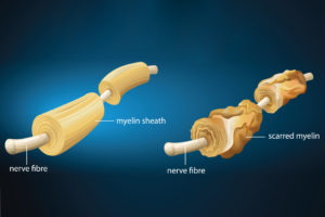 scarred myelin and demyelination