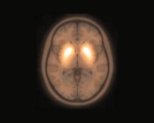 brain imaging in Parkinson's disease